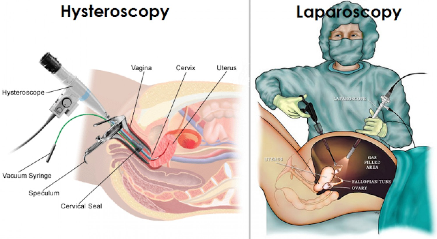Laparoscopy Recovery Time Amp Laparoscopy Side Effects