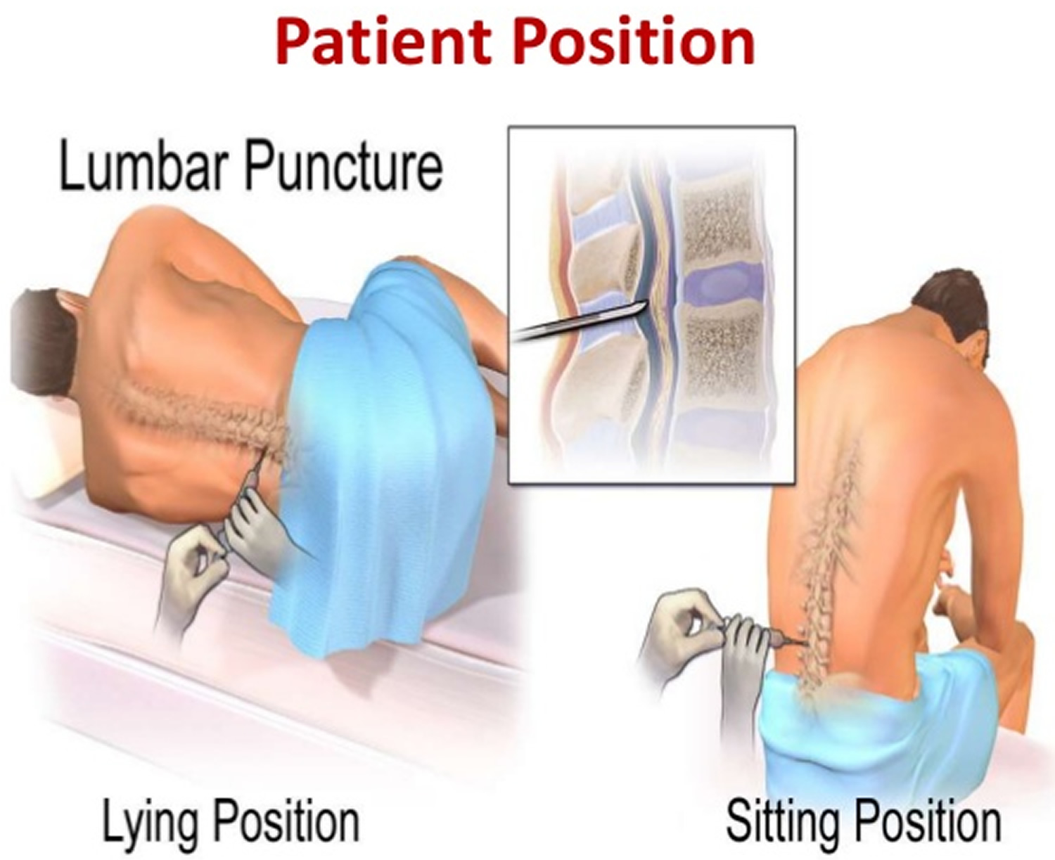 Lumbar Puncture Procedure Position Lumbar Puncture Side Effects