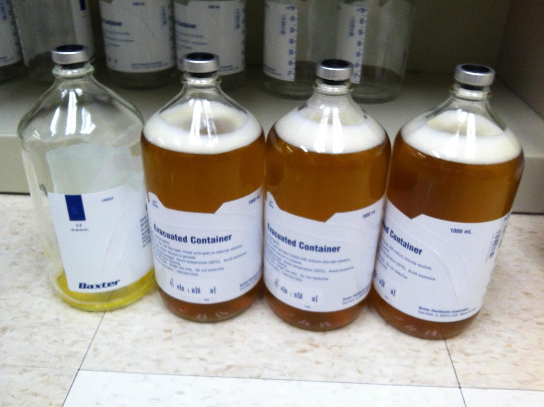 paracentesis fluid