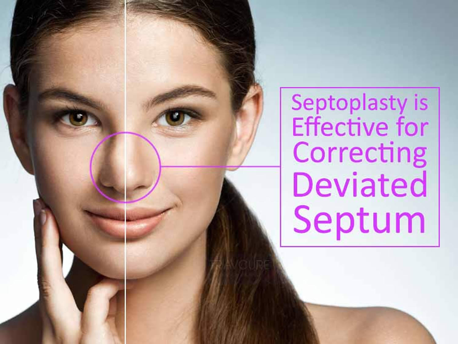 What Is Septoplasty forecast