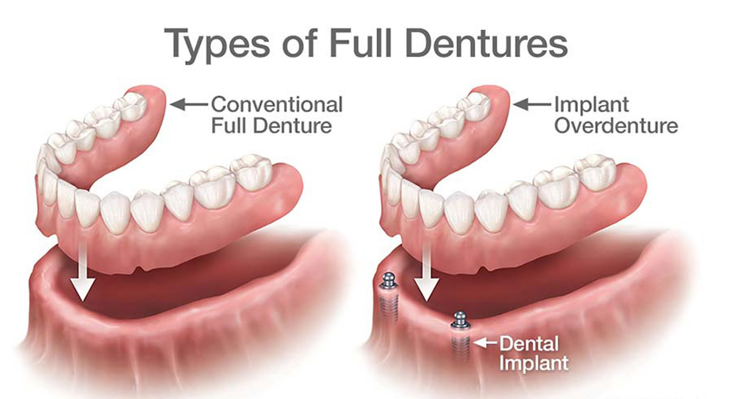Types of full dentures