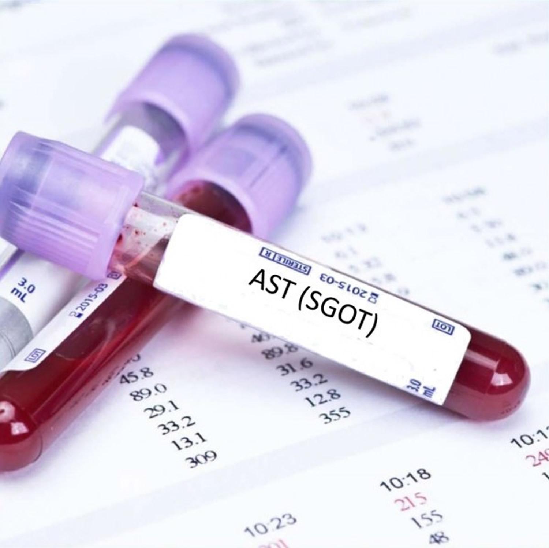 AST test