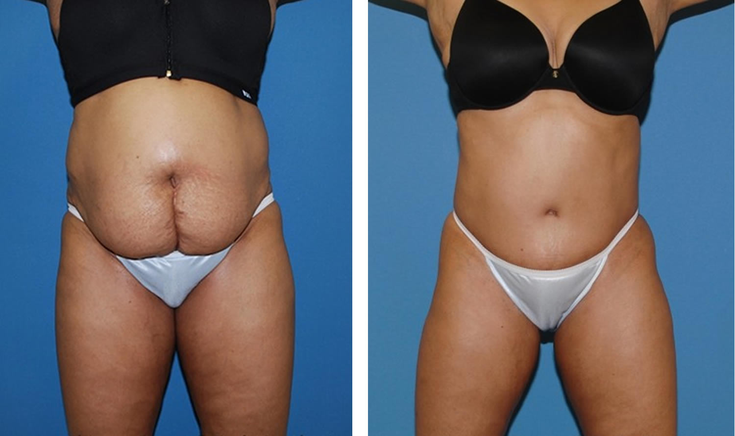 abdominoplasty-before-and-after