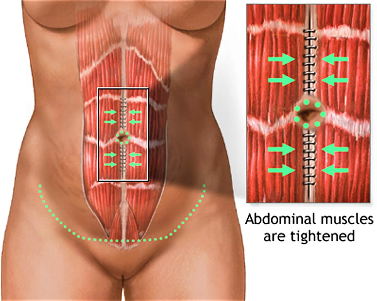 abdominoplasty surgery