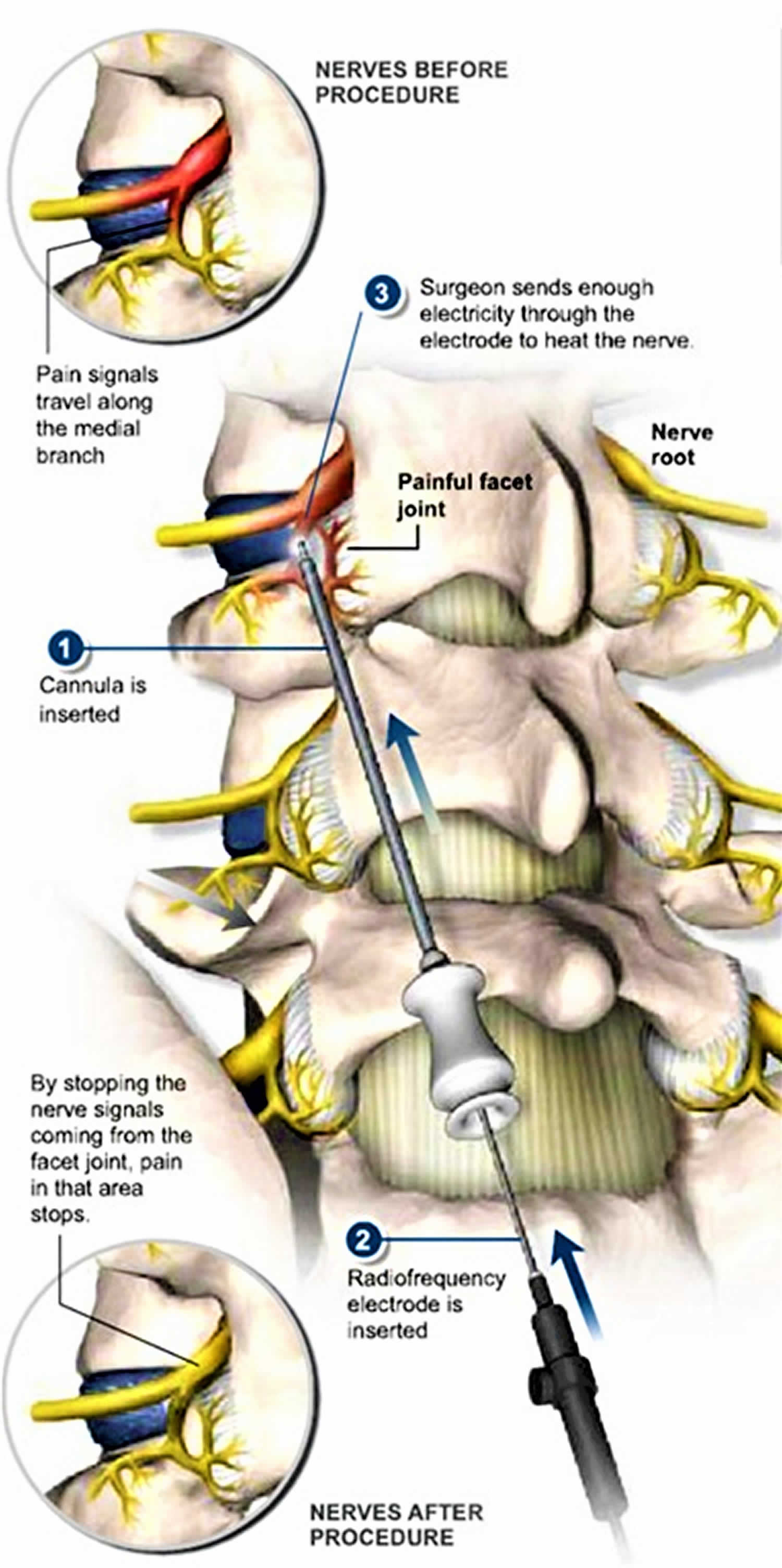 radiofrequency ablation for back pain