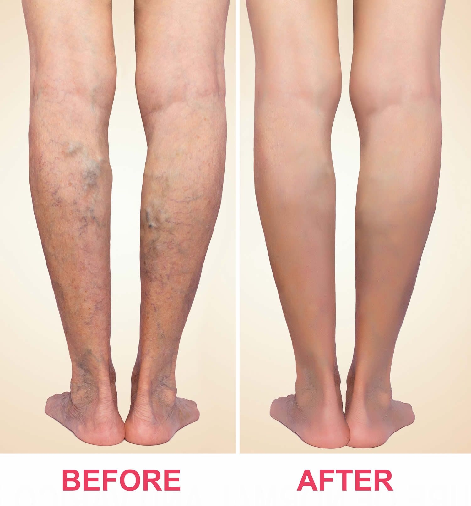 sclerotherapy before and after