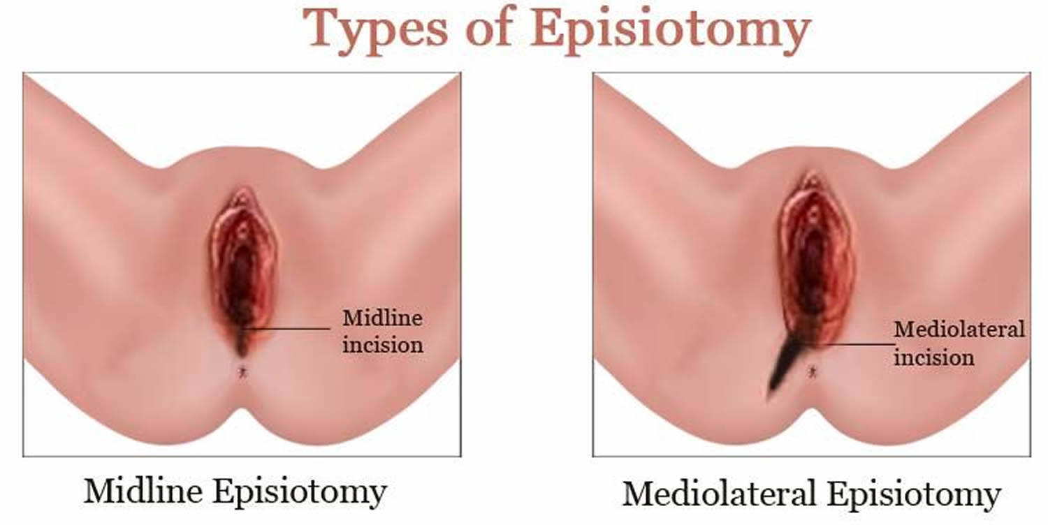 Painfull sex at episiotomy site