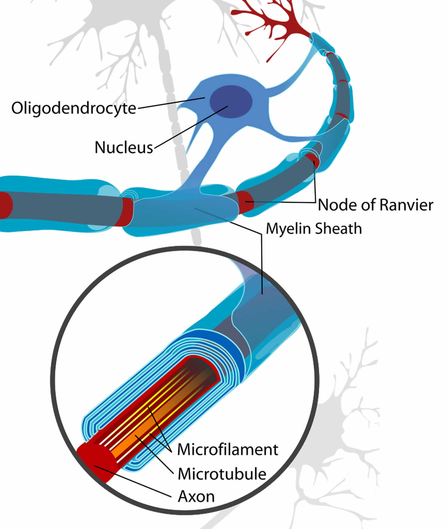 myelin's disease Ms is caused by damage to the myelin sheath,  ms is currently an incurable disease, resulting from an impaired immune system, which leads to.