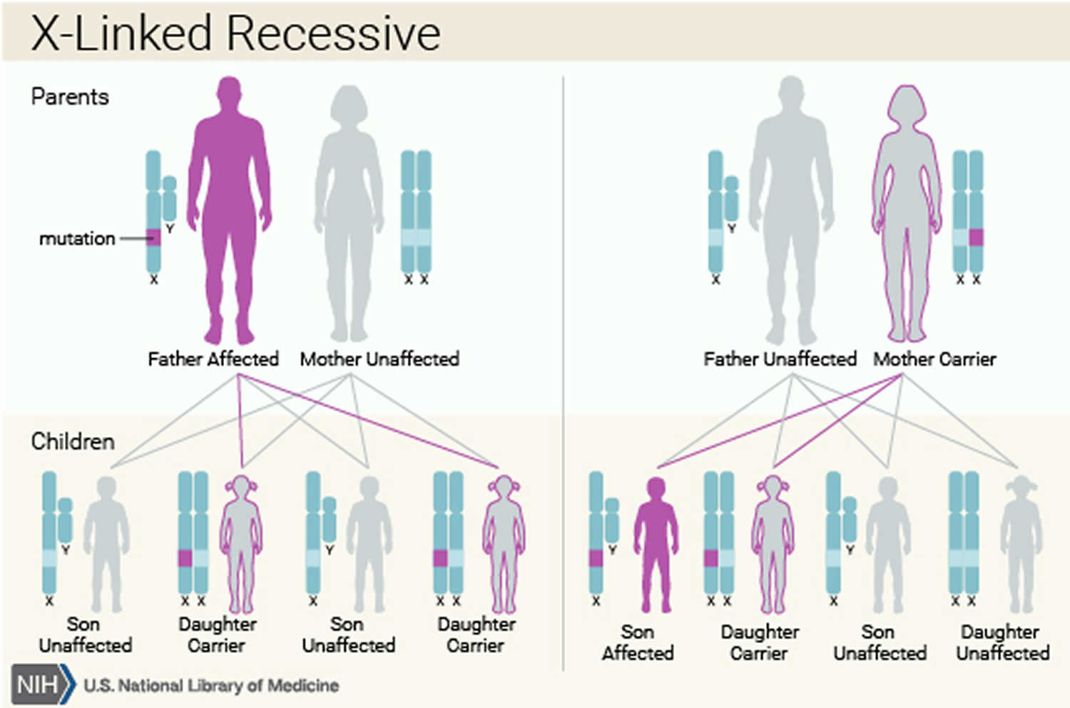 G6PD deficiency X-linked recessive inheritance