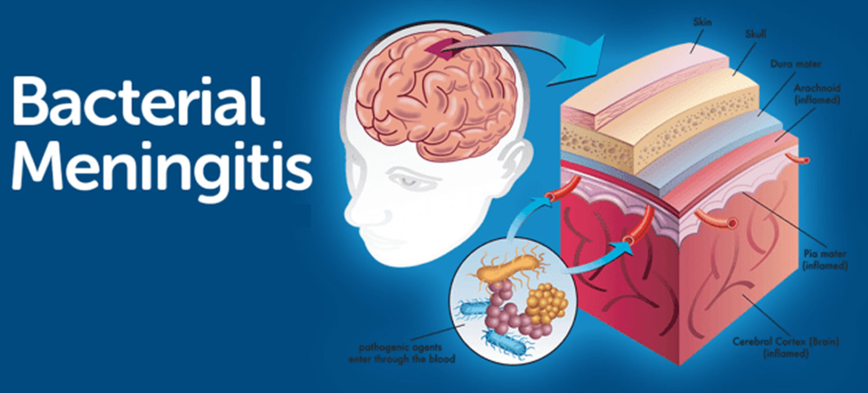 What are the symptoms help to identify meningitis in children