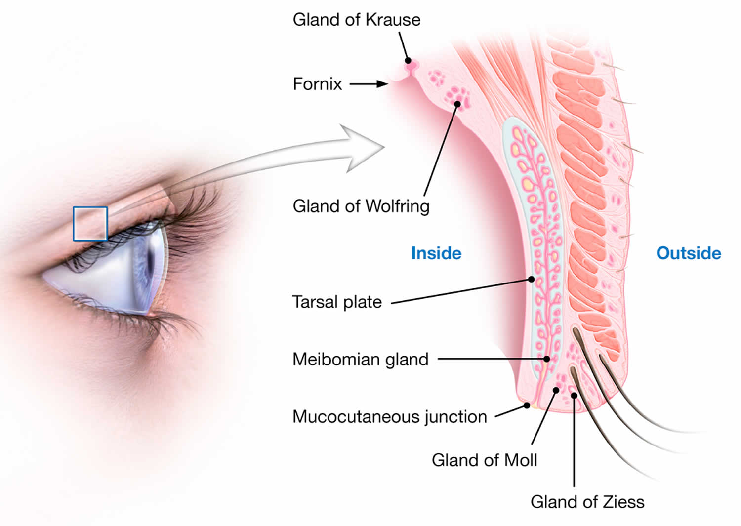 Pimple On Eyelid - Types, Causes & How To Treat Them