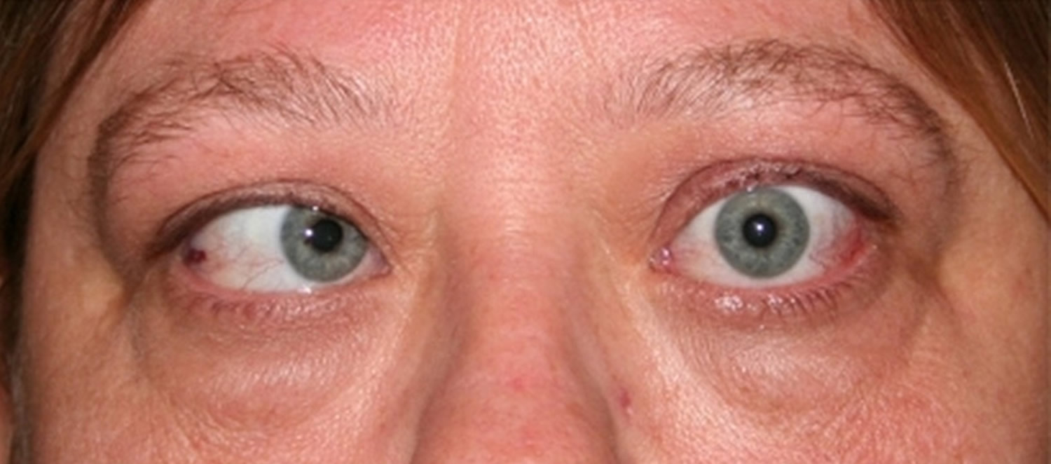 Treatment strabismus adults-7941