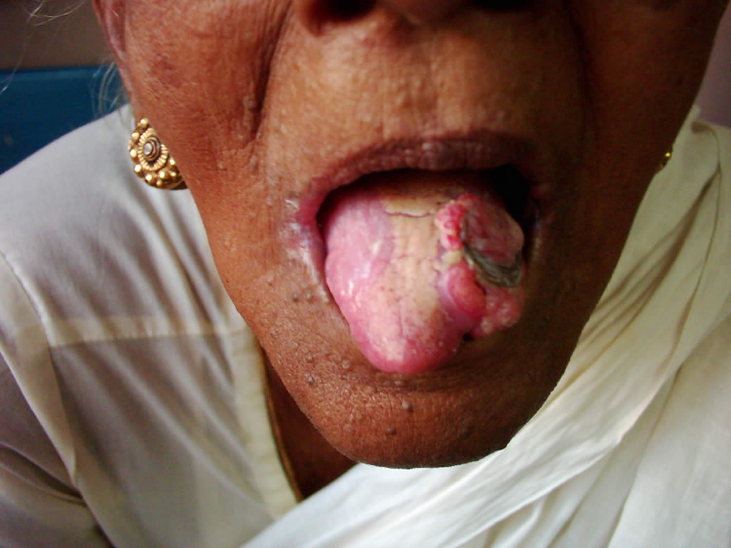 Tongue Bumps: Enlarged Papillae and Other