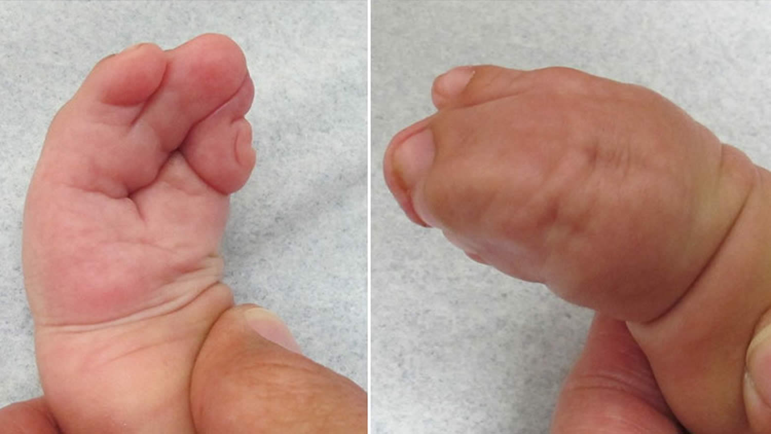 Apert syndrome hands