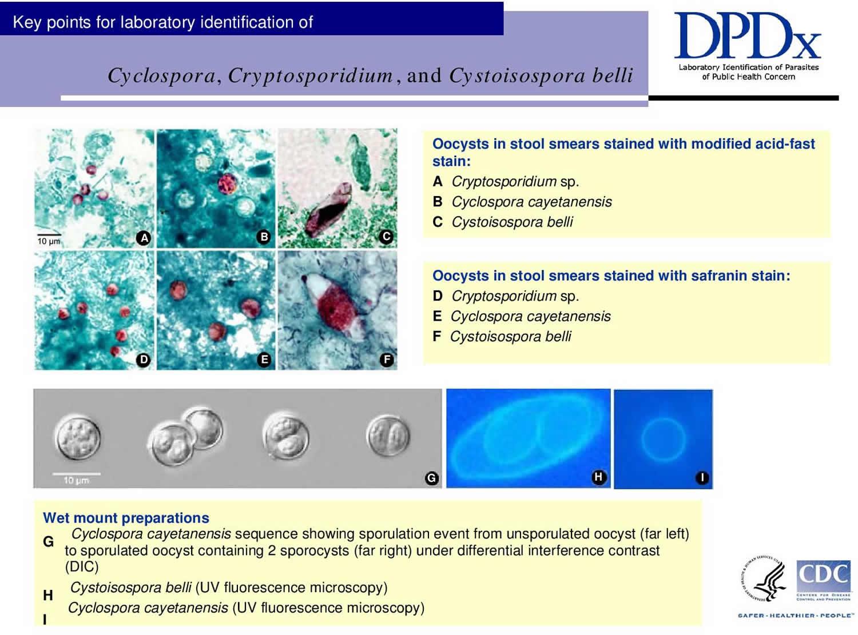 Cryptosporidium Cyclospora