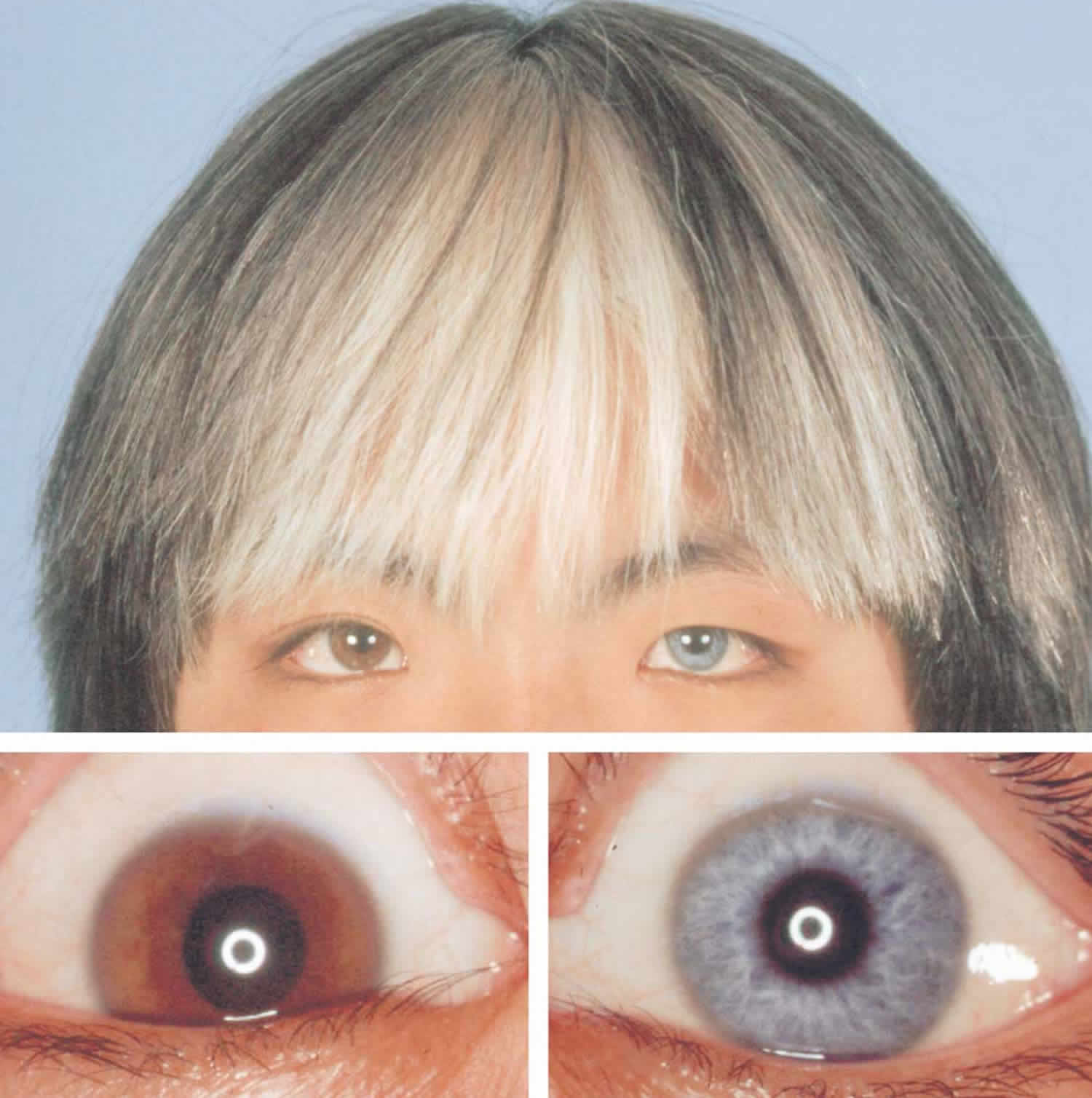 Waardenburg syndrome eyes