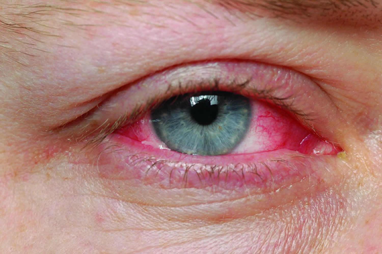 Pink Eye Conjunctivitis Causes Symptoms Diagnosis