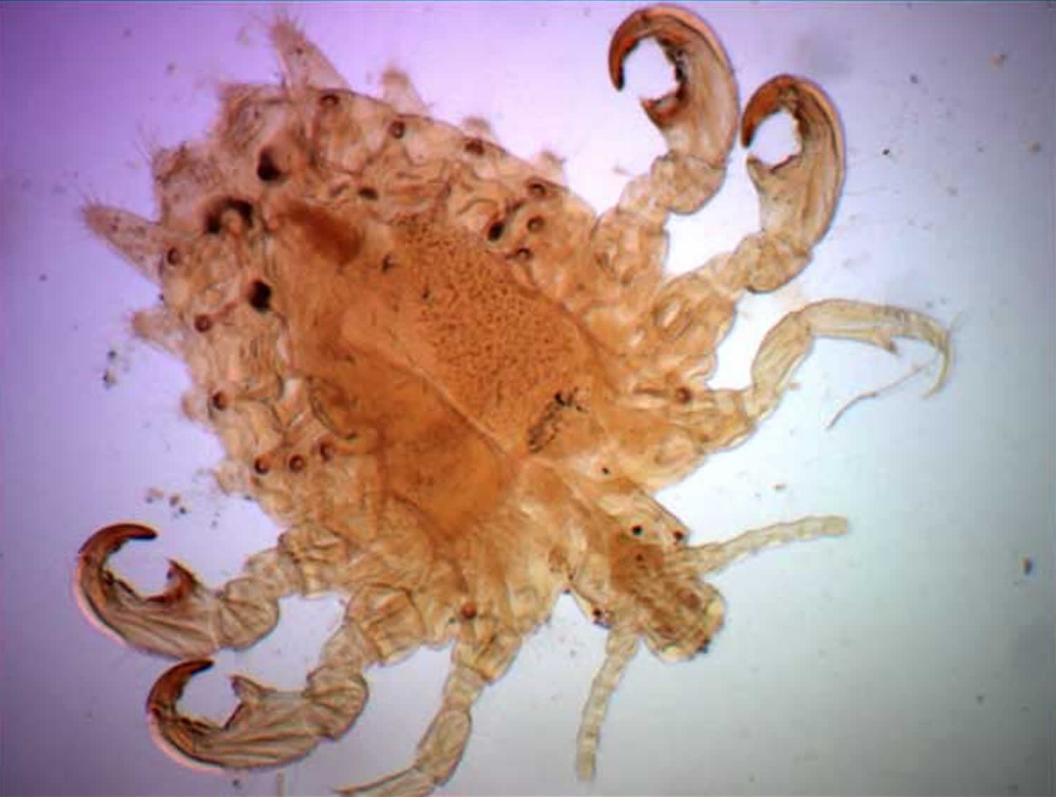 Image result for pubic lice