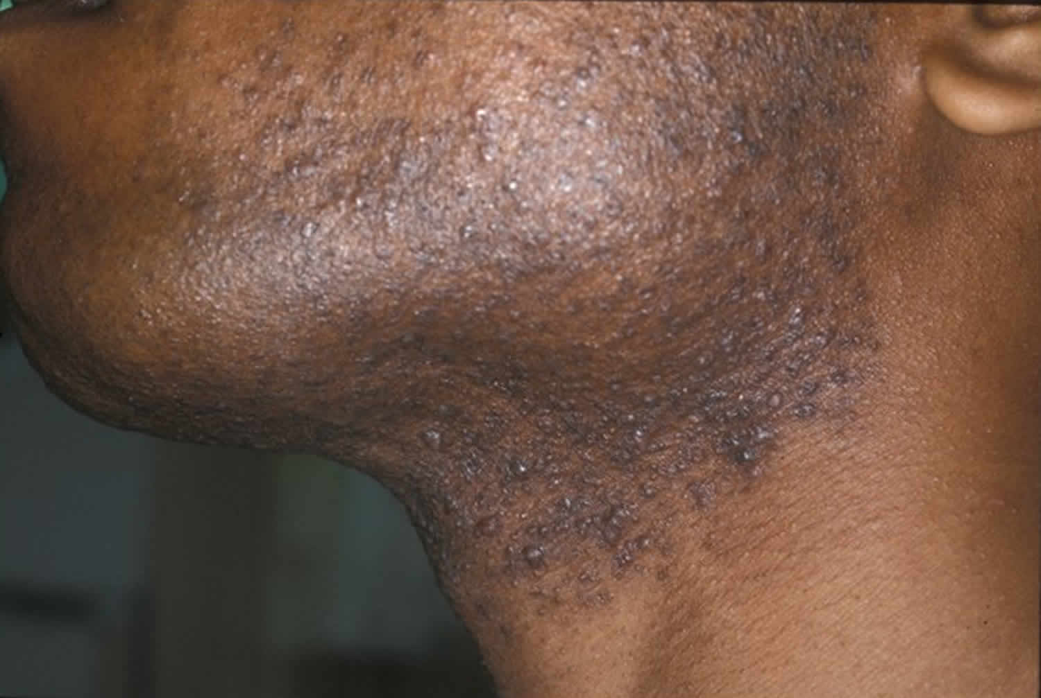 Razor bumps causes, prevention & learn how to get rid of