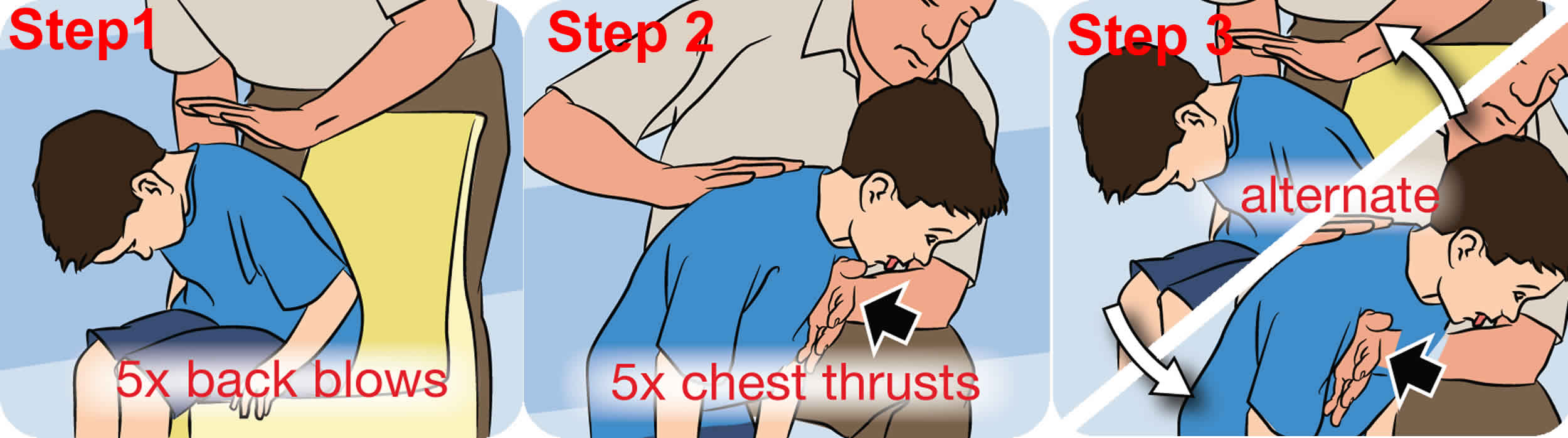 Choking first aid - clearing a blockage for for children and teens