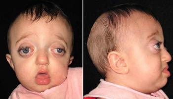 Pfeiffer syndrome
