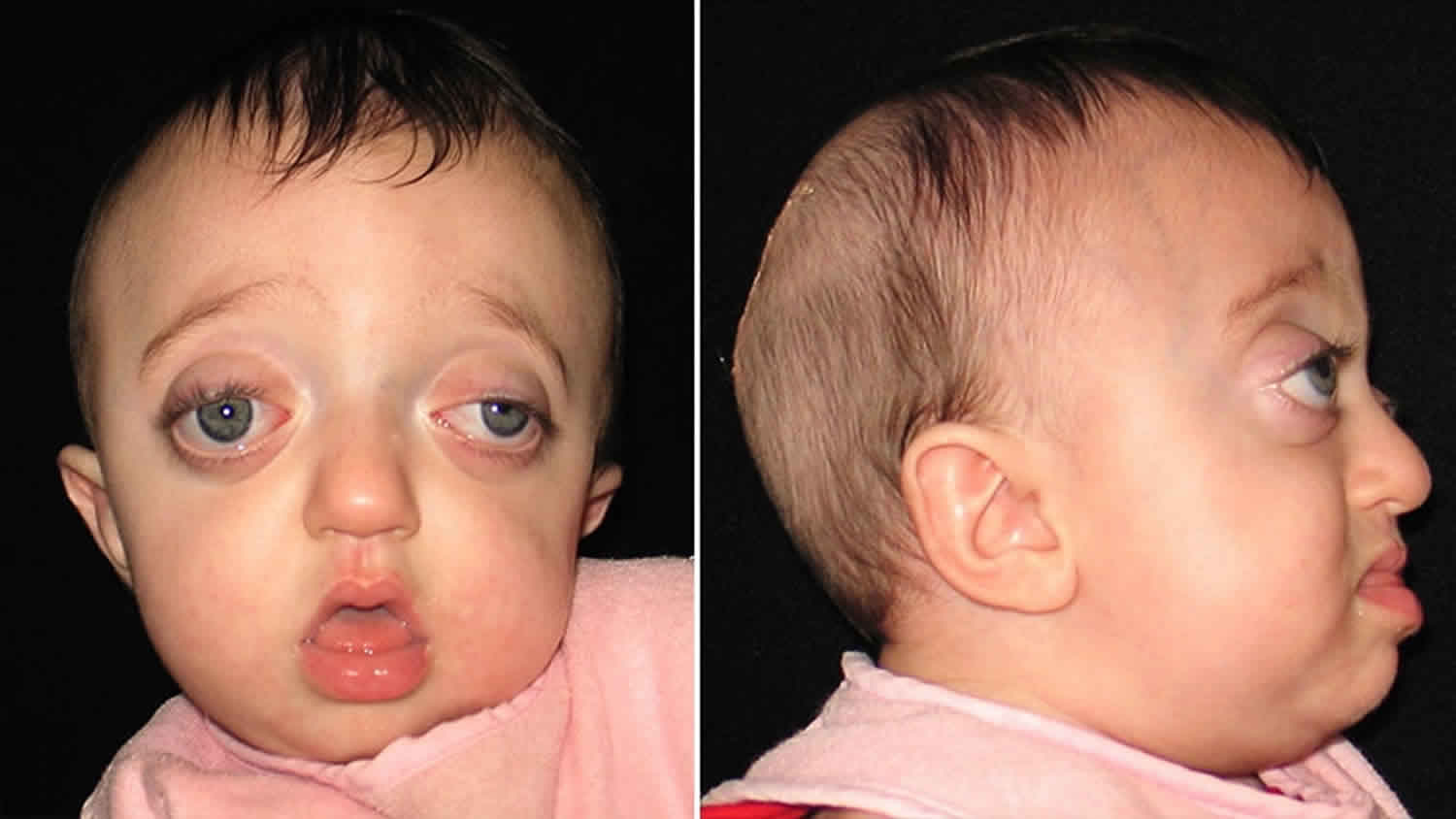 Pfeiffer Syndrome Causes Signs Symptoms Diagnosis Treatment