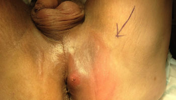 perianal_abscess