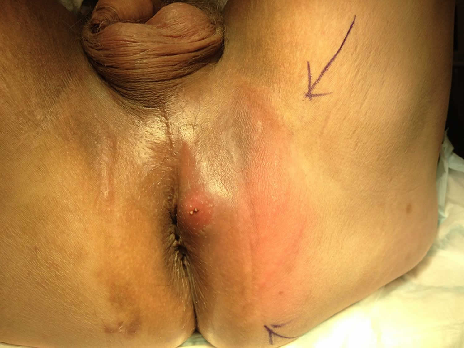Pari anal abcess picture 747