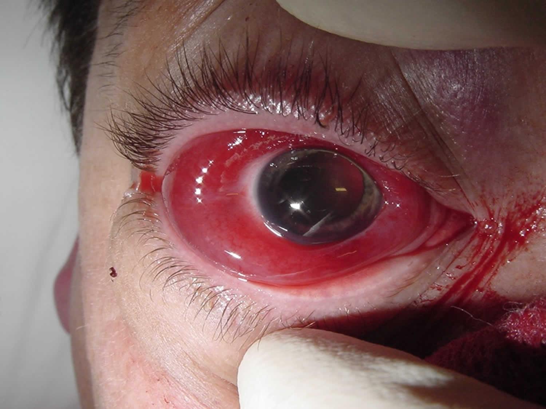 Retrobulbar hematoma