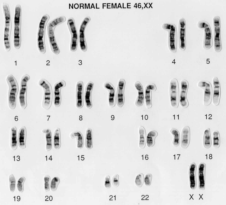 female karyotype