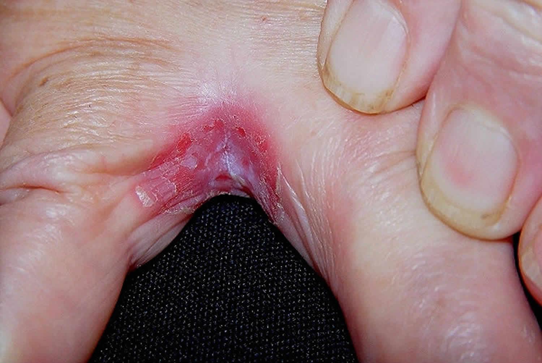 Intertrigo Causes Symptoms Diagnosis And Intertrigo Treatment