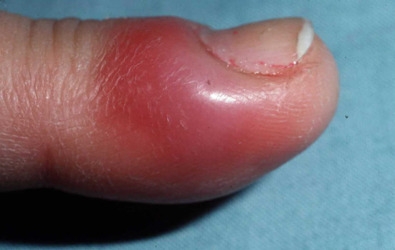 Acute paronychia