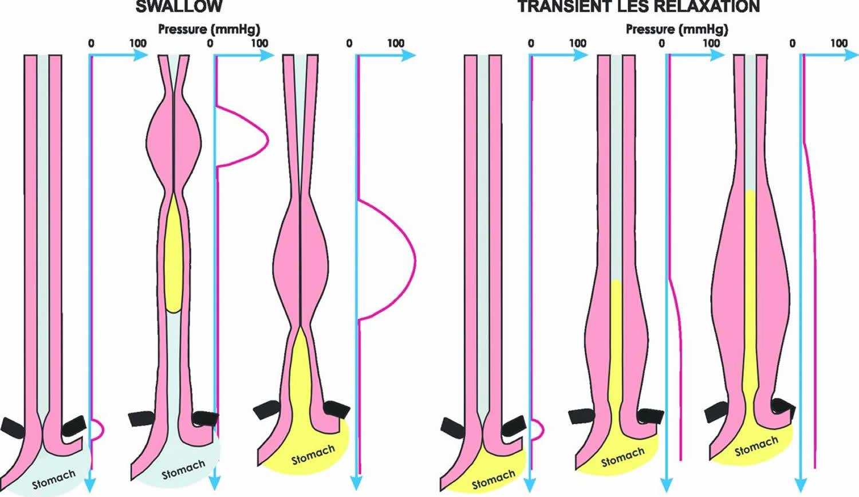 Esophageal peristalsis