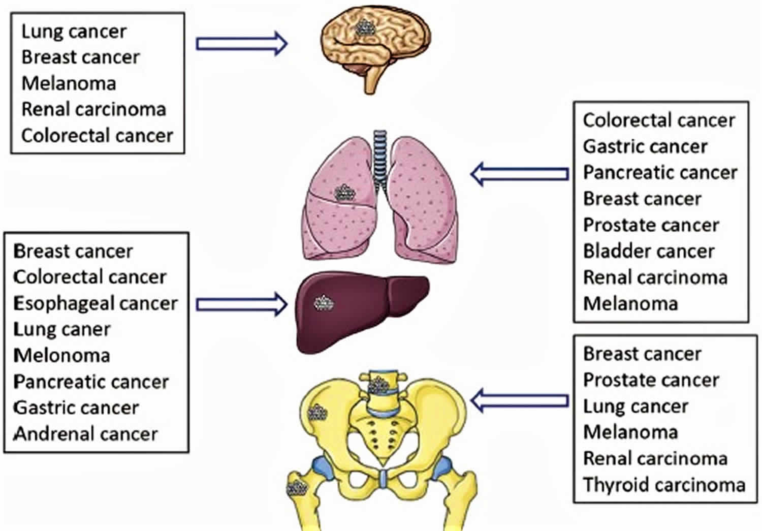 Stage 4 Lung Cancer >> Cancer metastasis causes, symptoms and metastasis survival rate