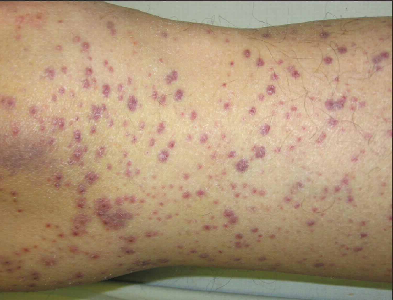 Perifollicular hemorrhagic papules