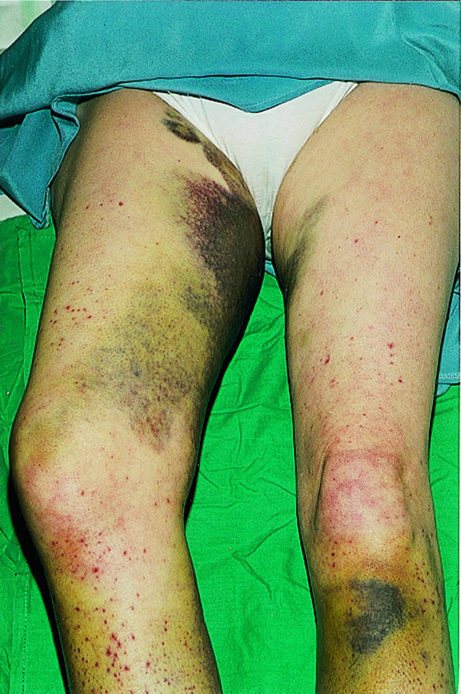 extensive bruising
