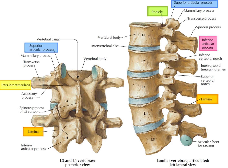 Spondylolisthesis Causes  Symptoms  Diagnosis  Grades