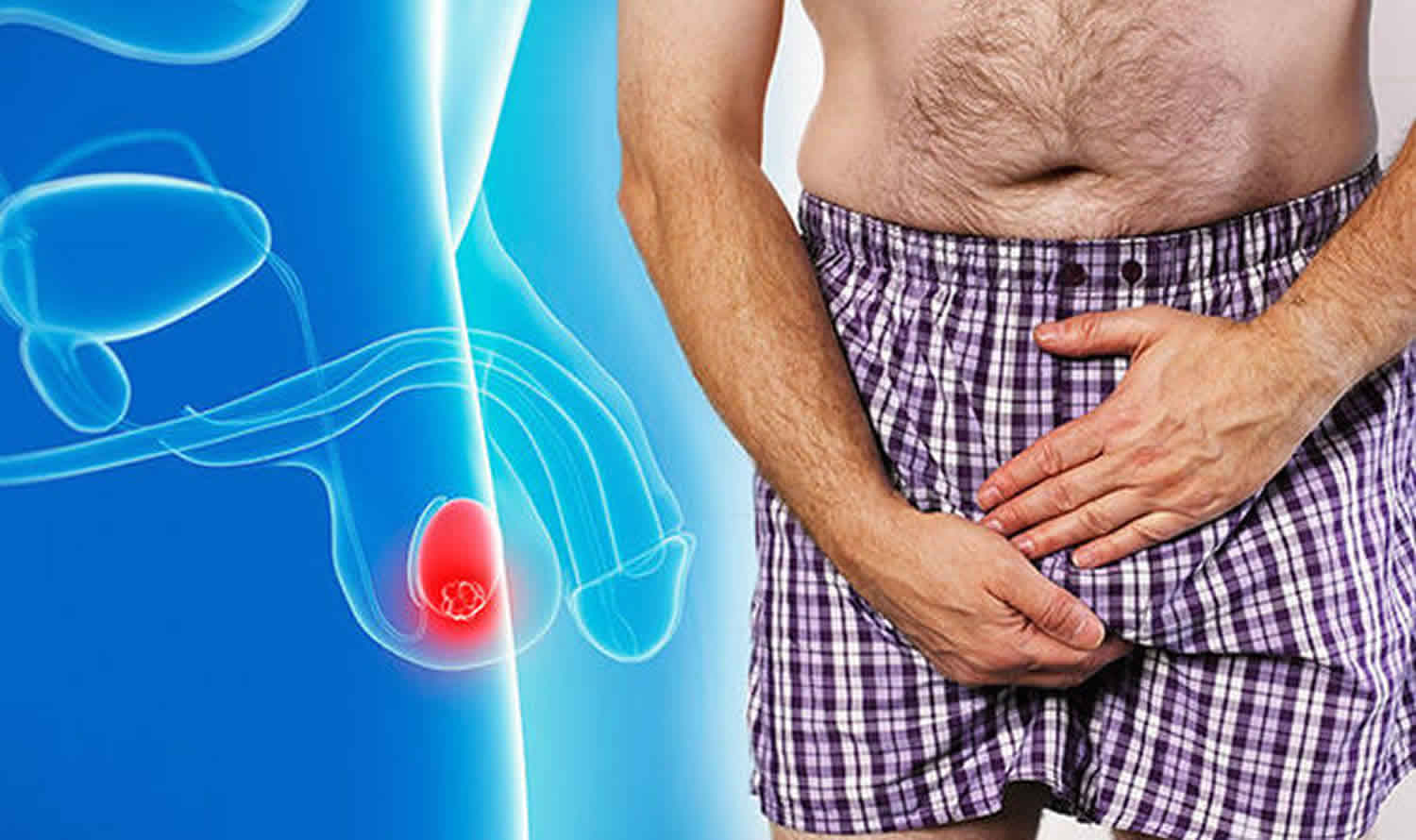 Lump On Testicle - Painful Lump Or Painless Lump Causes -4137