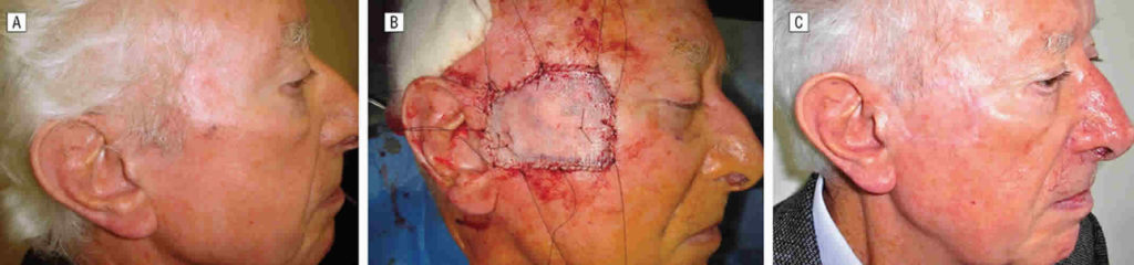 Skin Graft Indications  Procedure  Aftercare And Skin