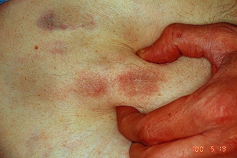 Metastatic calcinosis cutis