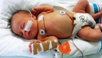 tracheoesophageal fistula in newborn