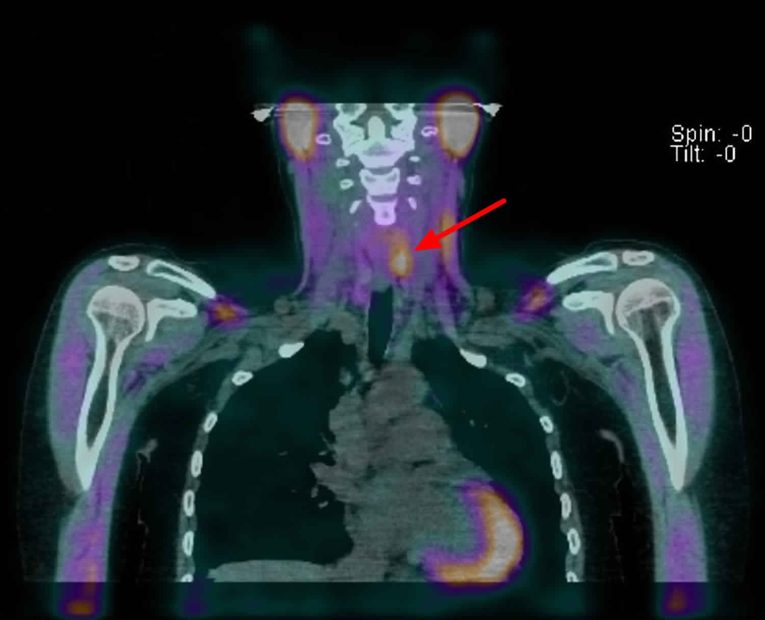 Parathyroid adenoma SPECT scan