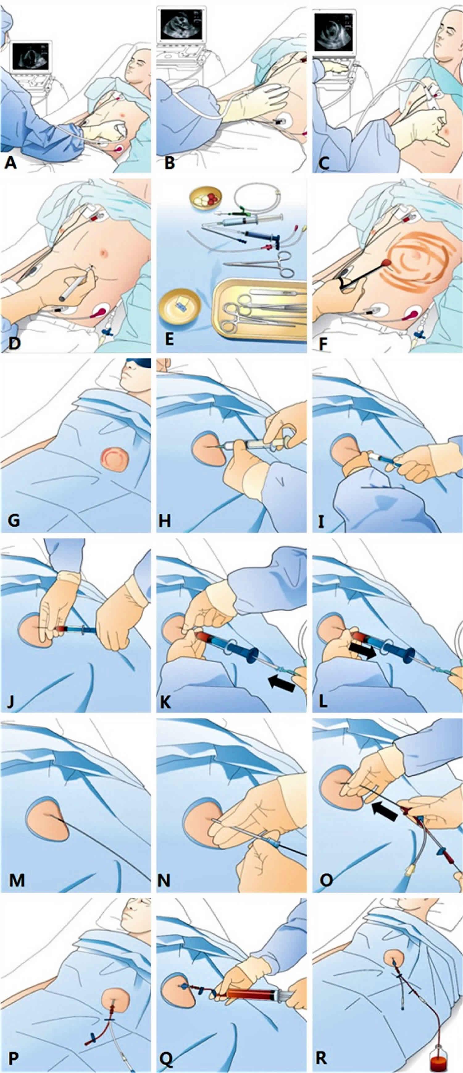 Pericardiocentesis technique