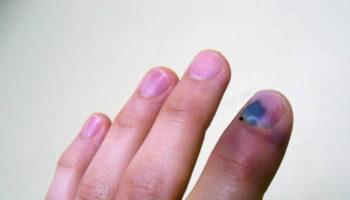 Smashed finger