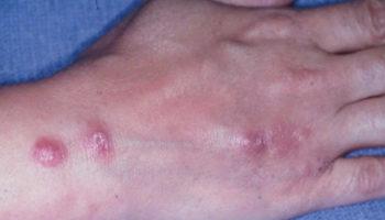 cutaneous sporotrichosis