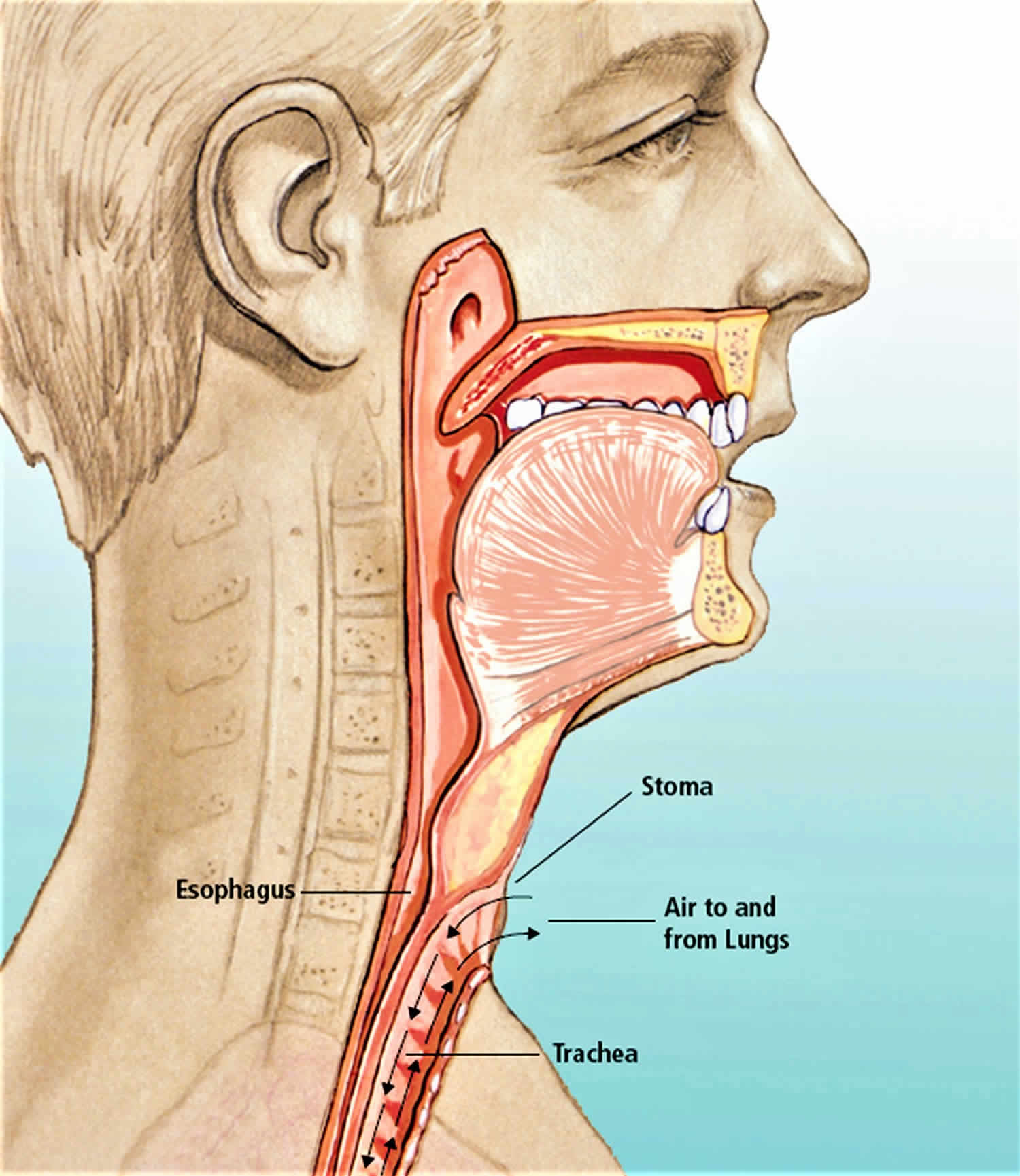 Total or partial laryngectomy procedure, complications