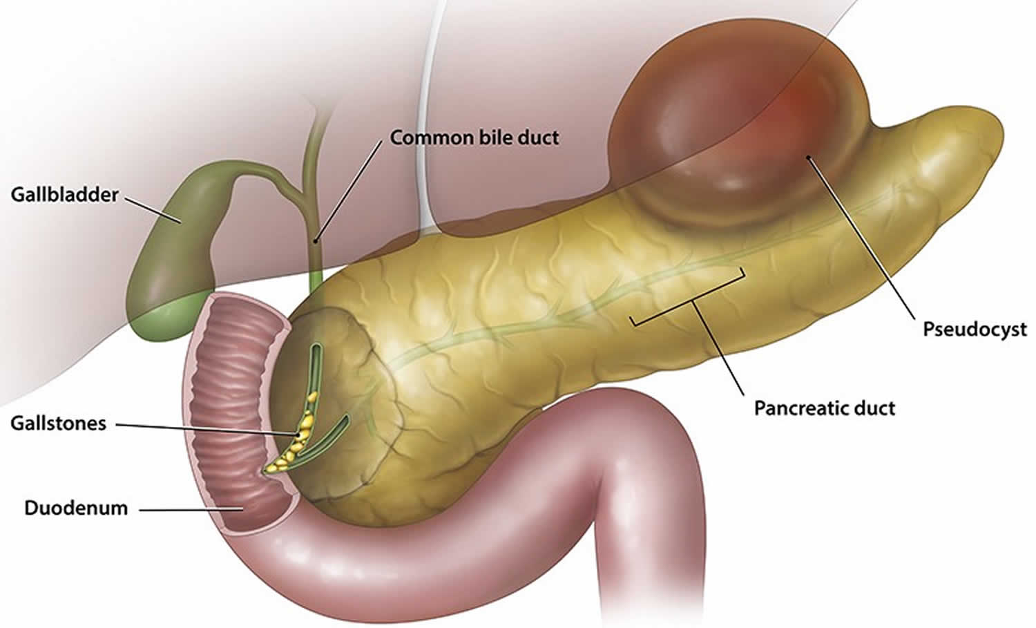 pancreatic pseudocyst
