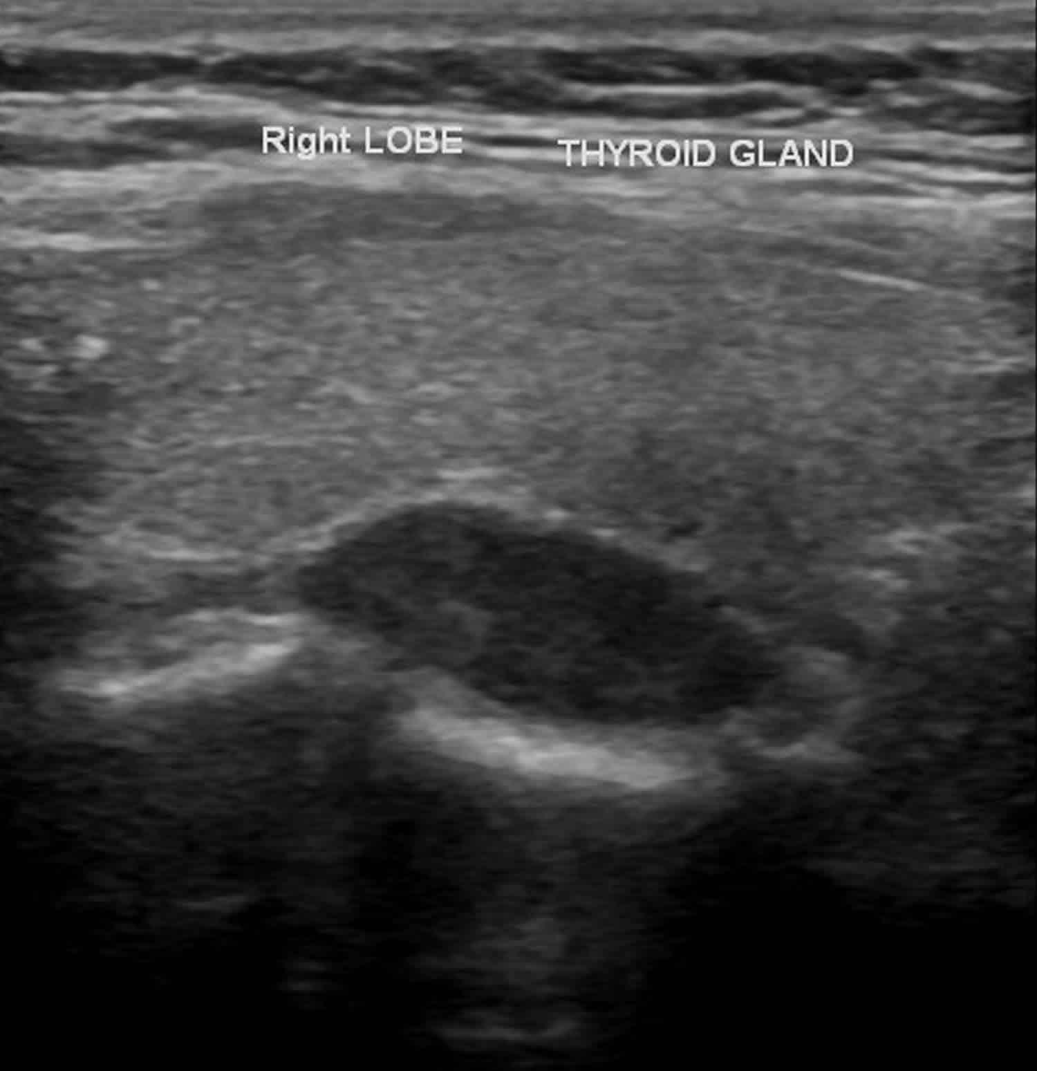 parathyroid adenoma ultrasound