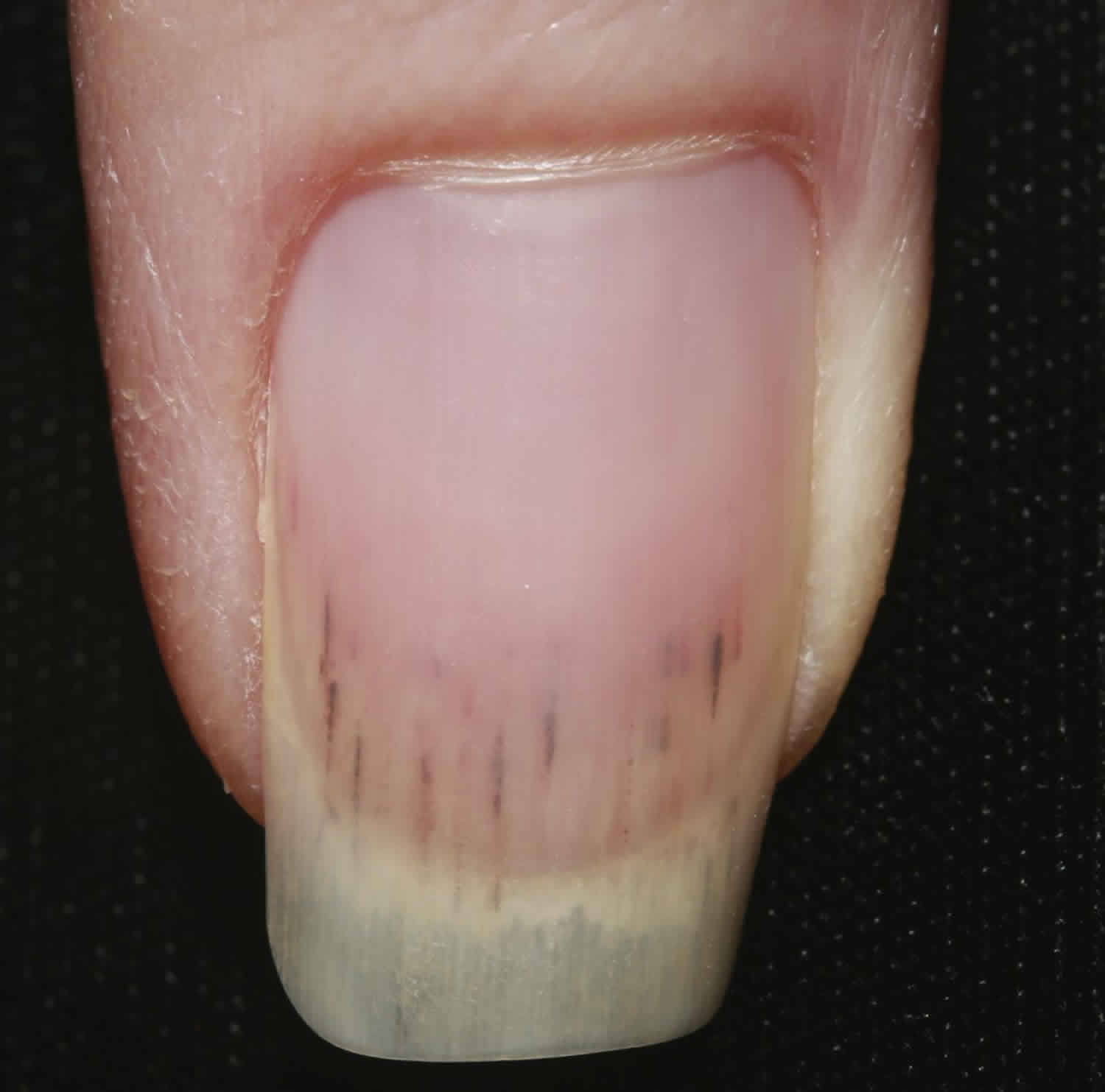 Splinter hemorrhages causes, what it looks like, diagnosis