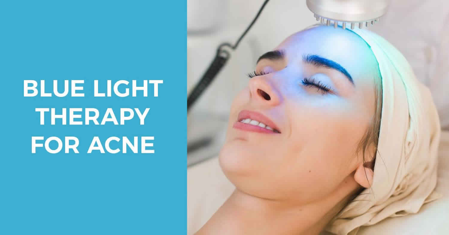 Blue light therapy